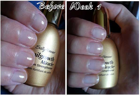 Nailgrowth Miracle Before After Results